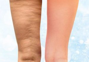 Amazing Tips to Get Rid of Cellulite in the Most Natural Manner