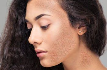 How to Treat Dry Skin in theSpring Season?