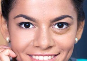 Effective Remedies to Give Away the Bags Under Your Eyes