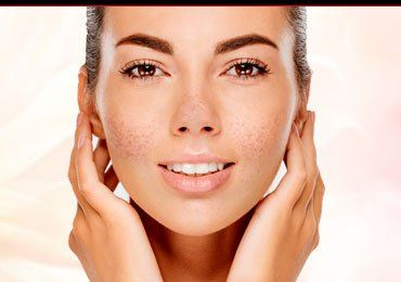 Natural Ingredients to Fight Pigmented Skin!