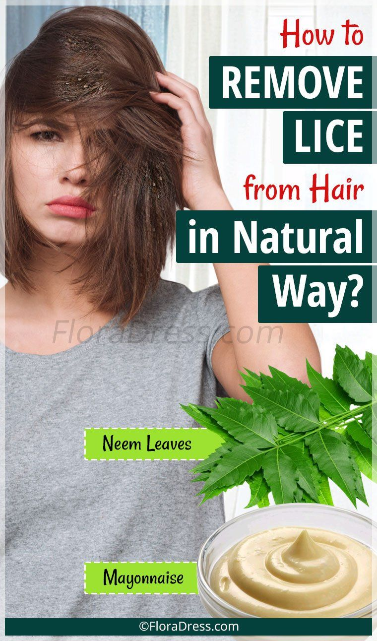 How To Remove Lice From Hair In Natural Way? - FloraDress