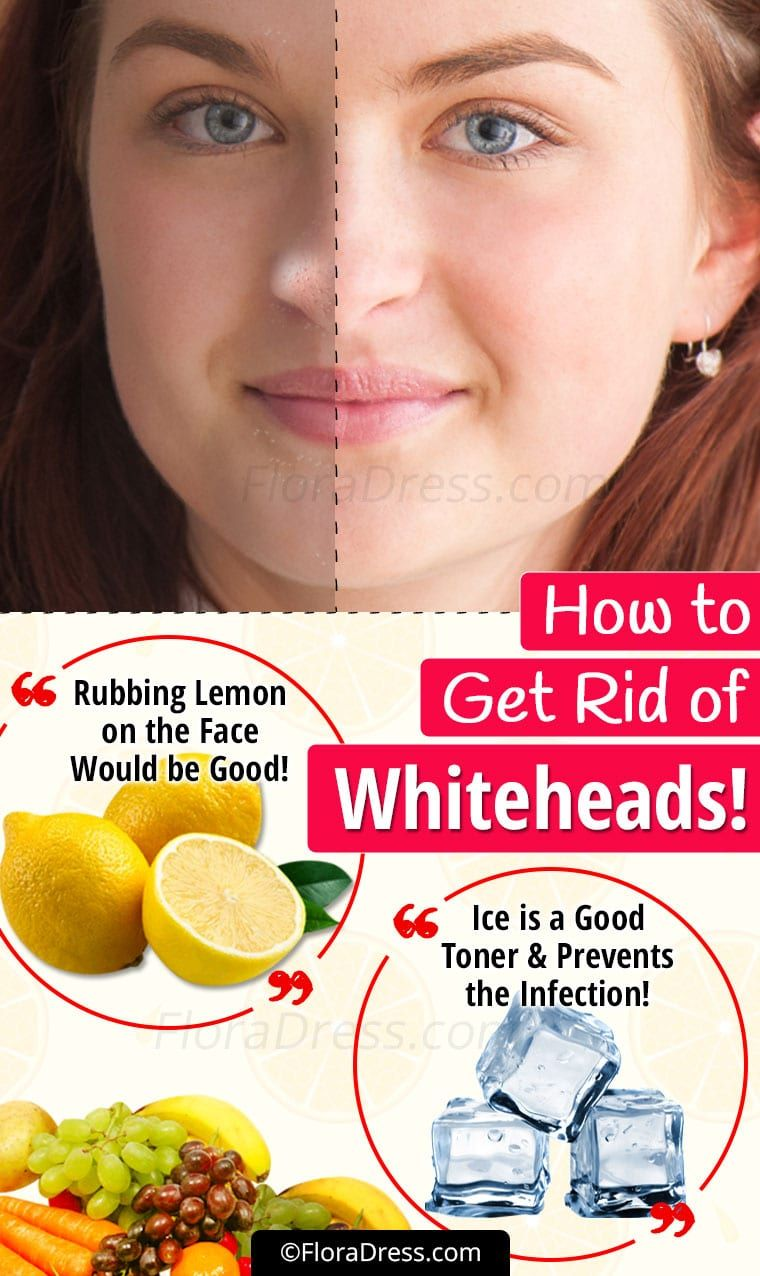 How to Get Rid of Whiteheads?