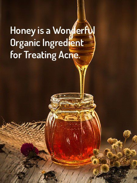 Honey for acne treatment